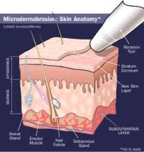 microderm diagram