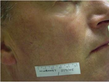 Facial Vessels After UltraPlus VPL Treatment