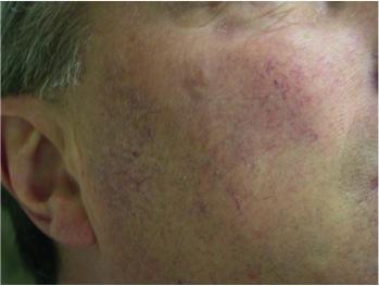 Facial Vessels Before UltraPlus VPL Treatment