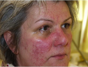 Rosacea Before UltrPlus VPL Treatment