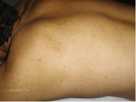 Man's Back After UltraPLus VPL Treatment