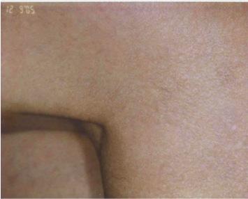 Vascular LesionsAfter UltraPlus VPL Treatment