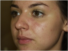 1 week after the 30 day Acne Clearing program