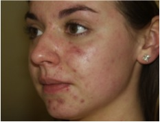 Acne before the 30 Day Acne Clearing Program