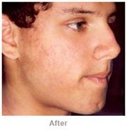 Acne After DiamondTome