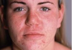 Acne Before DiamondTome