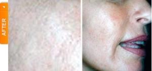Skin Tone After DiamondTome