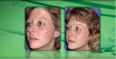 Before and After 6 DiamondTome Tx