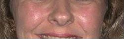 Pores After 6 DiamondTome Tx