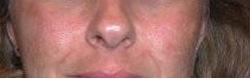 Pores Before DiamondTome