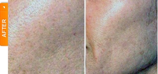 Skin Texture After 6 DiamondTome Tx