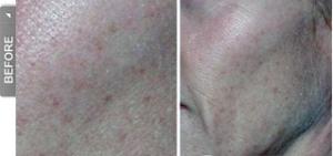 Skin Texture Before DiamondTome