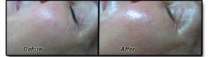 Skin Tone Before and after DiamondTome
