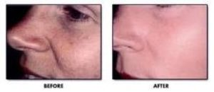 Texture Before & After DiamondTome