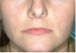 30 day acne clearing program
