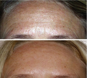 Fractional Collagen Induction B&A