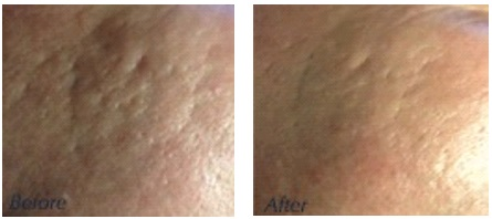 Before & After FCI, CIT, microneedling, acne scar