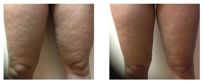 ThermiRF Cellulite