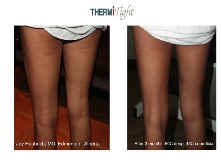 ThermiRF Before & After21
