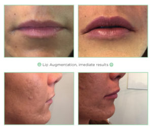 NovaThreads Lip Aug