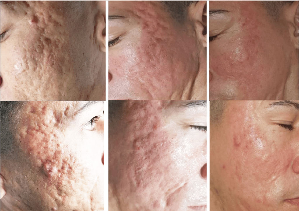 Procell for Acne